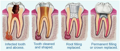 Root Canal Horsforth Smile Clinichorsforth Smile Clinic
